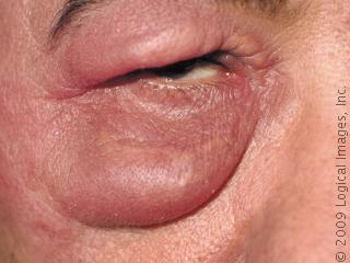Related pictures facial cellulitis on face pictures photos images